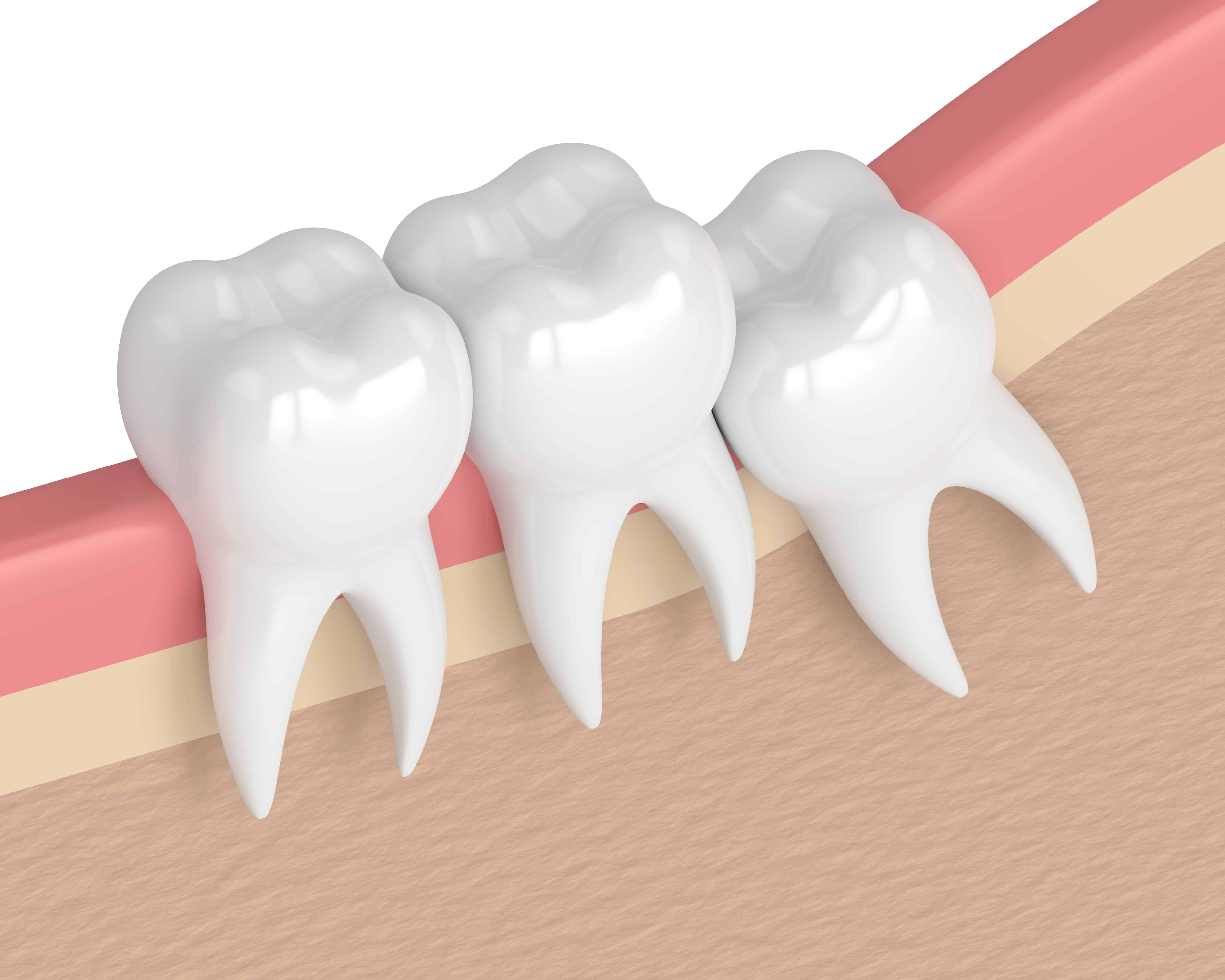 Extraction dents sagesse Montreal