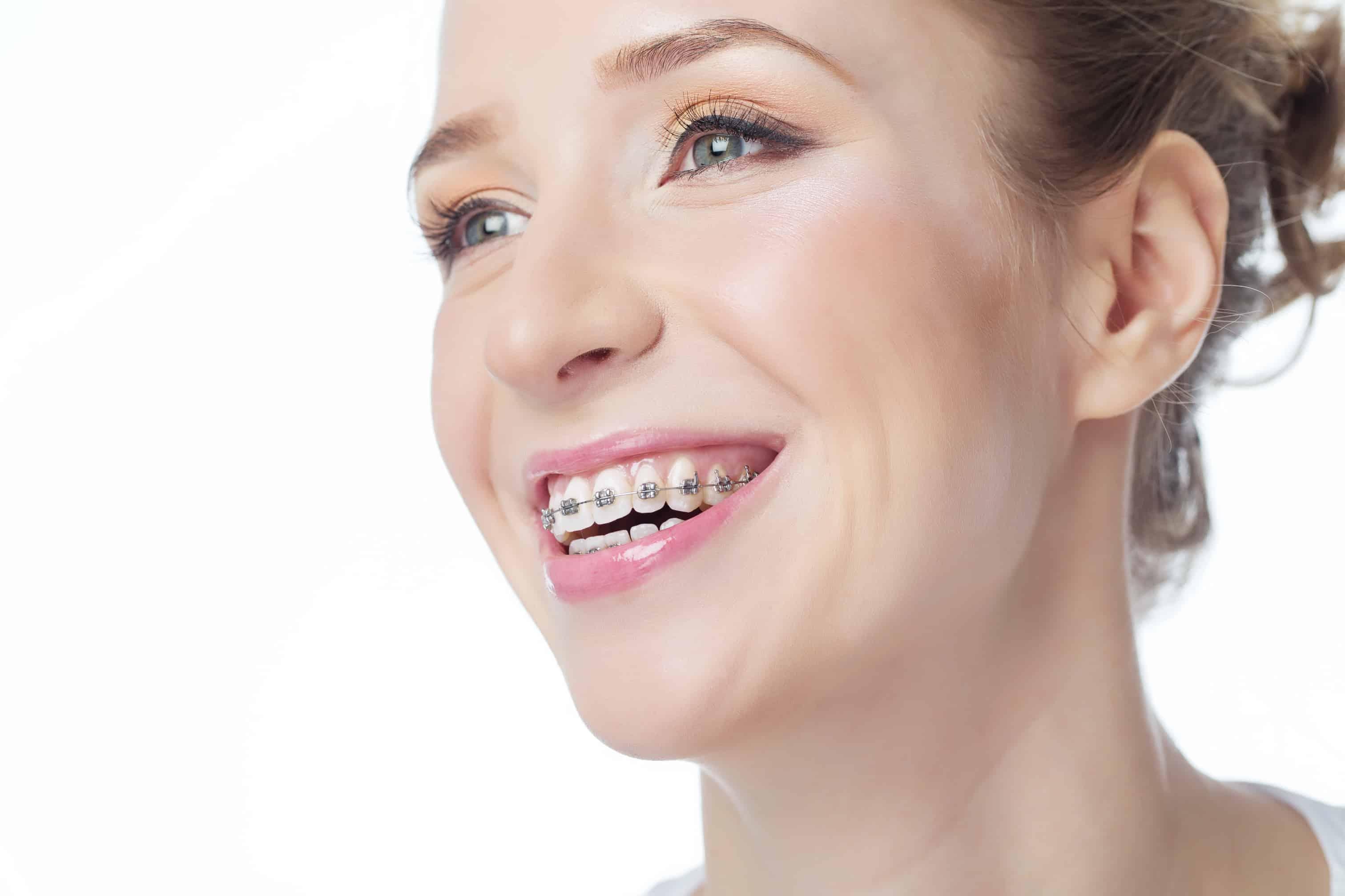 Orthodontics adults Montreal