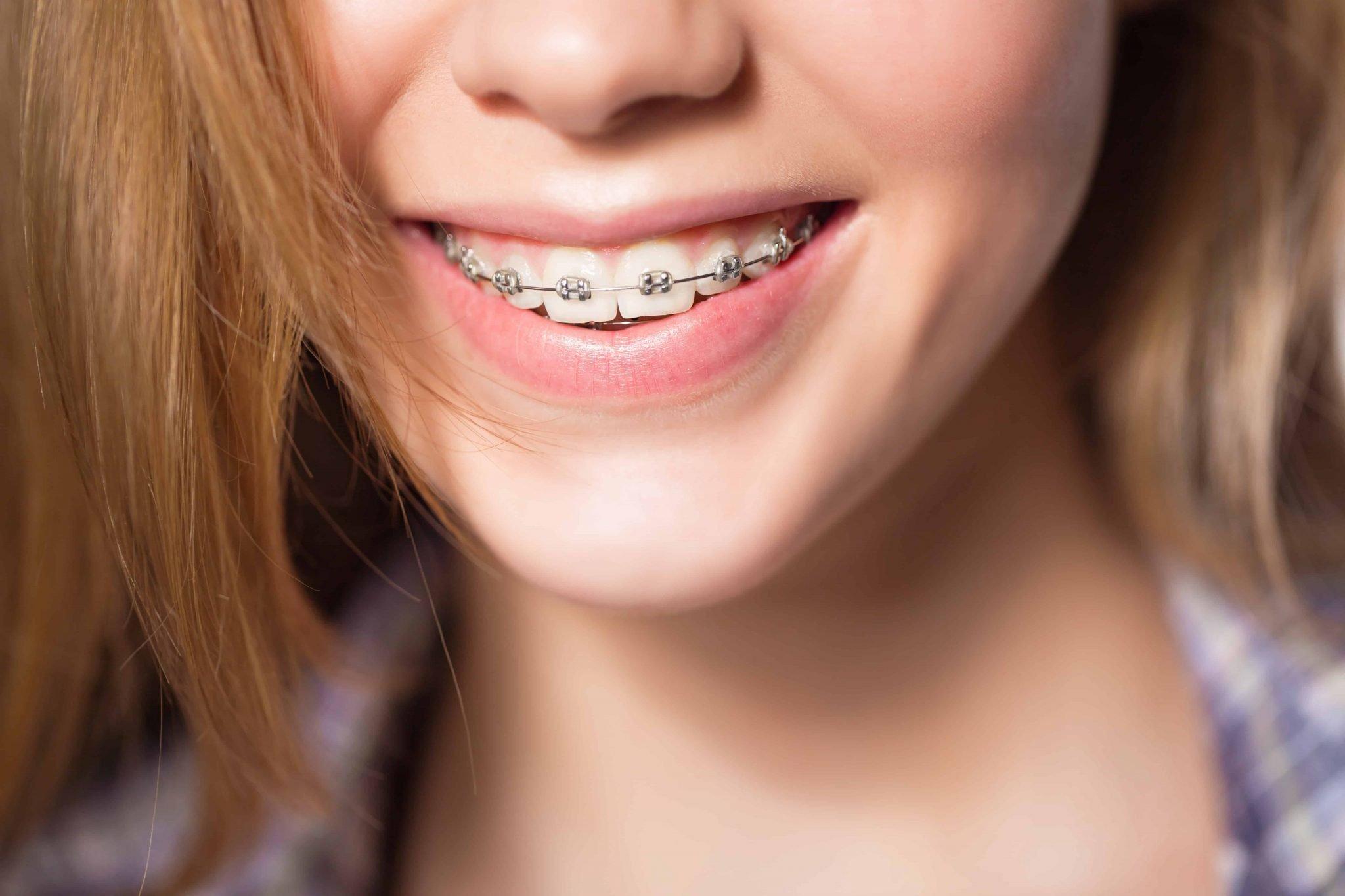 Orthodontics teenagers Montreal